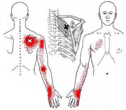 Images like this are usually referring to trigger points, or areas of myofascia that radiate sensation and pain to surrounding areas.