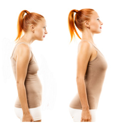 "Bad posture to bad posture- not bad to good!  Image on left shows the over-rounding, or kyphosis of the upper back with the pelvis forward of the heels, image on right shows rib thrust, to appear to have ""good posture."""