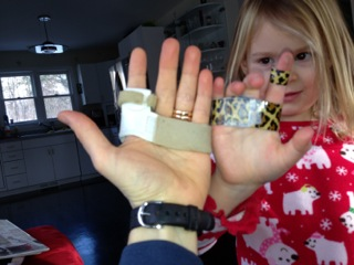 Pre-surgical splint to immobilize MCP joint and a kid version designed and built out of duct tape by my youngest child.