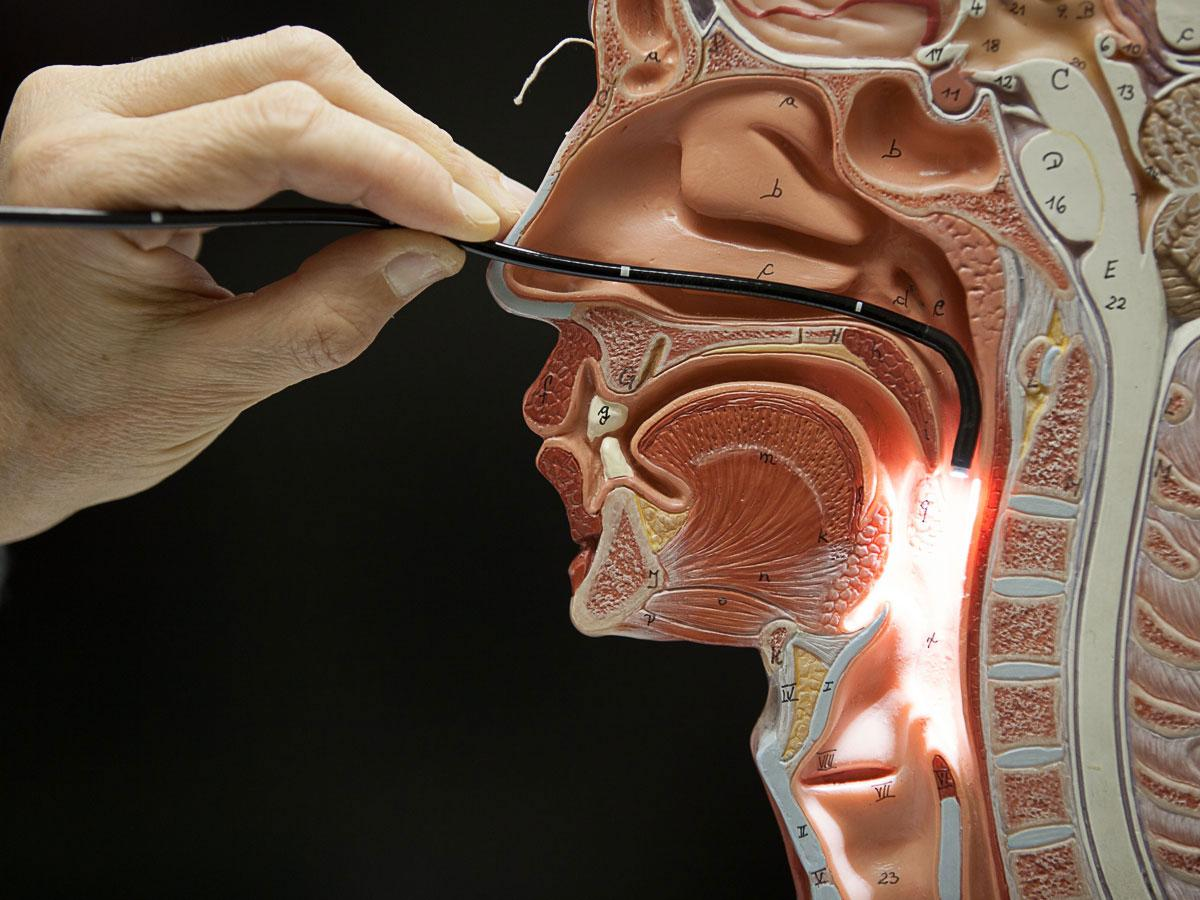 This image from  www.voicedoctor.net  does an excellent job of showing the nasal pathway of studying the vocal folds.