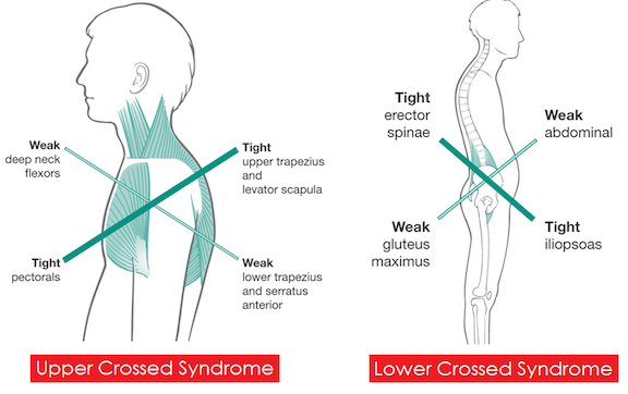 "One of the common theories to address imbalances is upper/lower crossed syndrome. This  simplified chart  demonstrates muscles that are weak, which may be inhibited, and muscles that are tight and perhaps overly dominant or overly developed. I would also suggest that the words weak vs. tight are not the best to describe the syndromes, because some muscles are weak and ""long resting length"" and some are weak and ""short resting length."" There's more to it than just weak=long and strong=short. This is still a muscle theory, which means that there are mixed feelings about whether these relationships are accurate!"