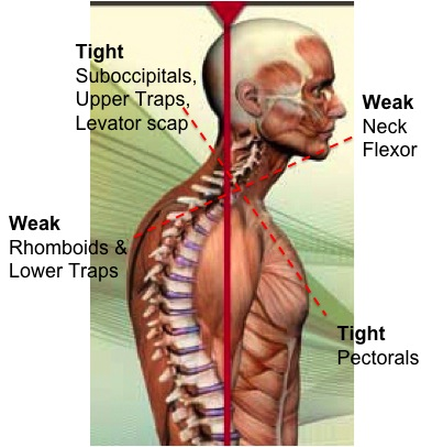 Although this is still a theoretical model, many musicians do have many of these symptoms, including forward head posture, and overly kyphotic/rounded upper spine, and weakness in the back body.