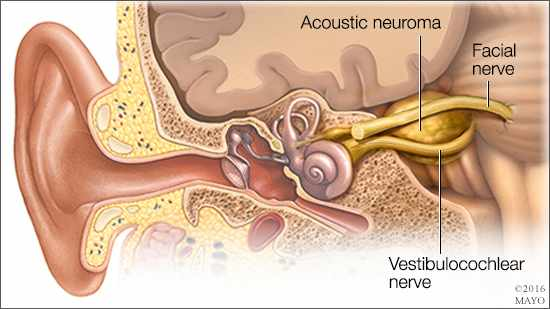 Image from Mayo Clinic on Acoustic Neuroma
