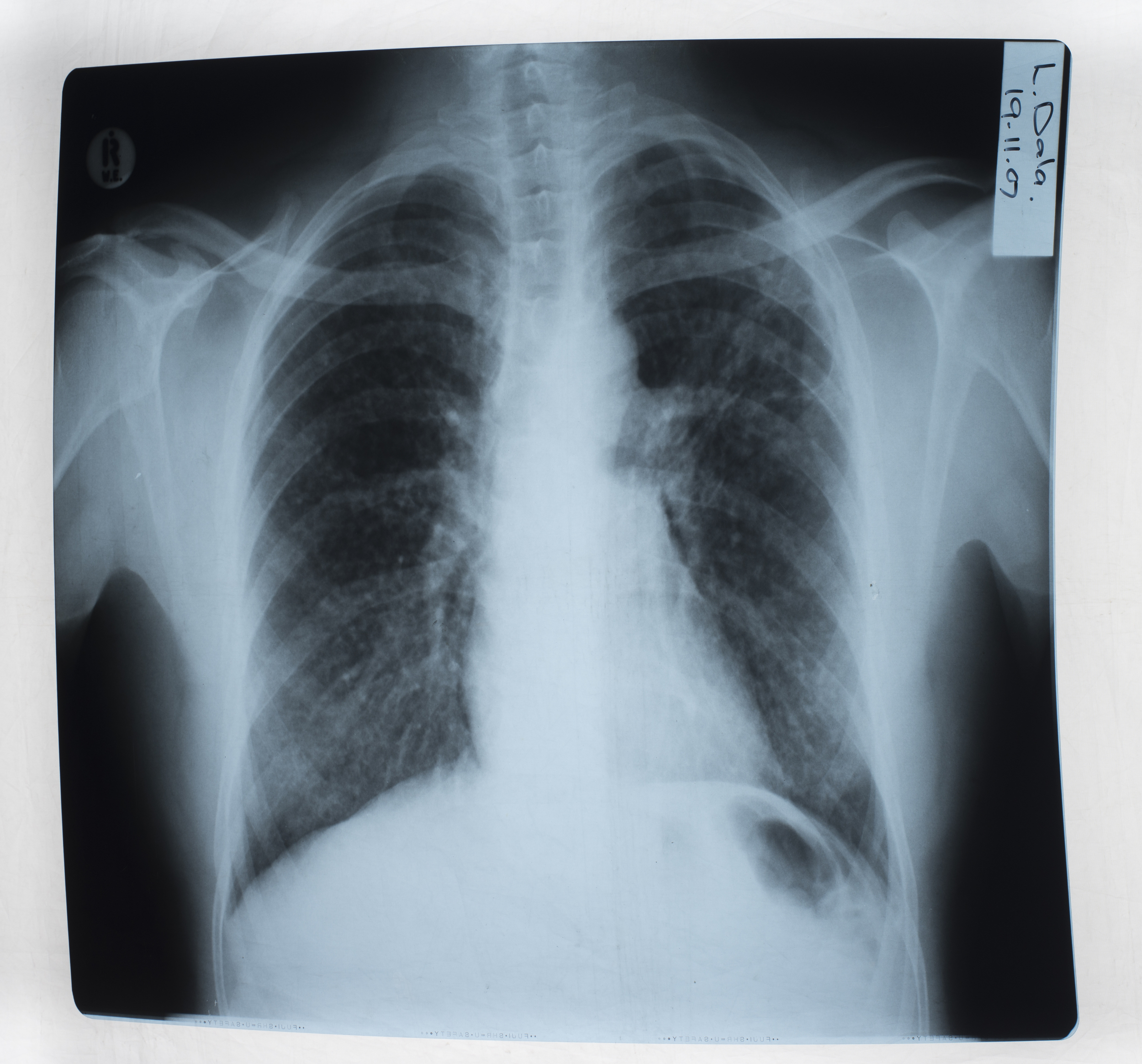 X-Ray of Mr Dala's lungs.