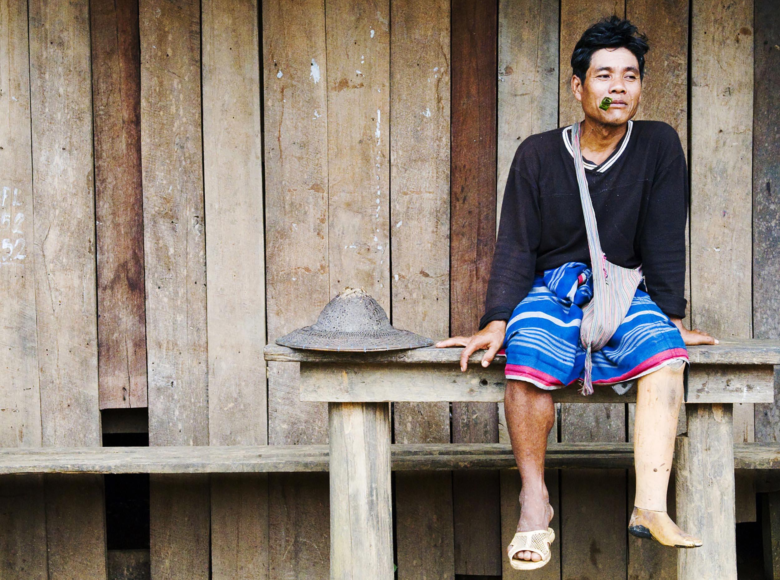 A Burmese land mine survivor in Mae Samlit village, Thailand