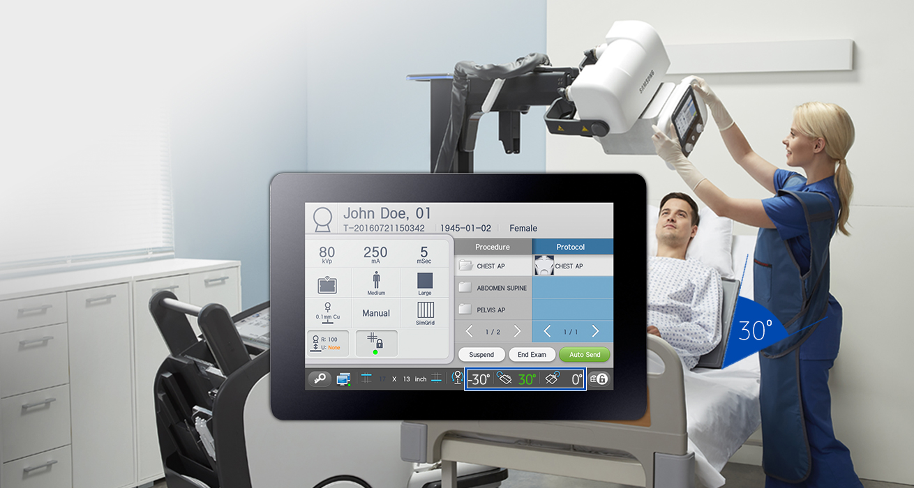S-Align   S-Align provides precise alignment for superior imaging. The angle of the detector is displayed on the THU (Tube Head Unit) to enhance image quality during free exams. When the THU and detector are within a certain radius, the angle can be automatically fitted.