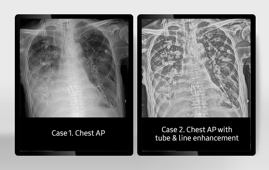 Tube & Line Enhancement  The TLE (Tube & Line Enhancement) function improves the clarity of images with a single on-screen click. A companion image is created and processed to enhance the visibility of the tube and line to help diagnoses.