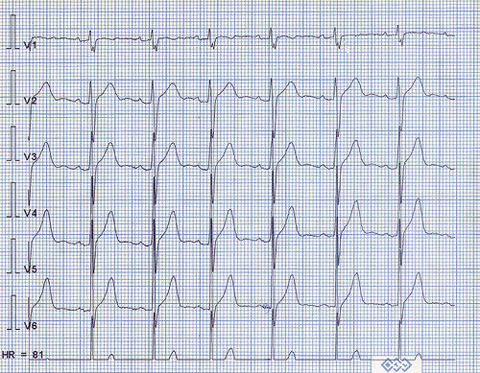 EKG by rwk, http://www.flickr.com/photos/rwkhung/13106083/