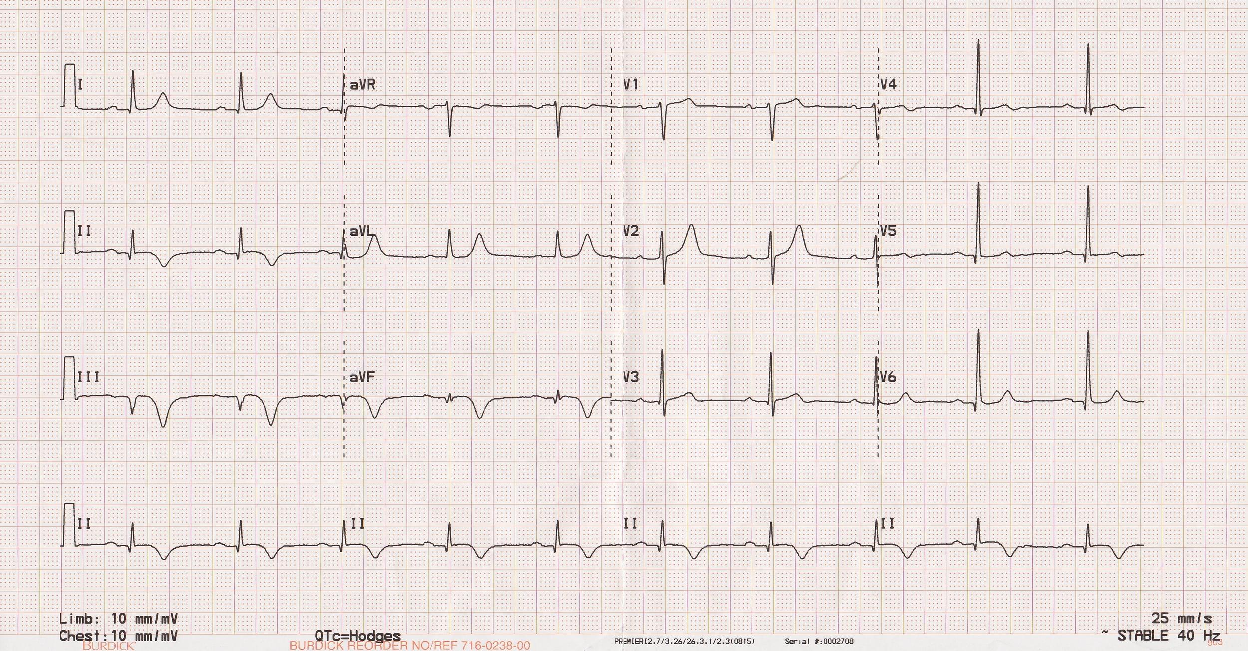 A 12-lead ECG.