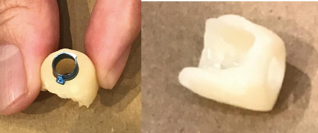 手捏套件無論是在外觀上還是應用上都顯得結構不良和厚度過厚,造成病患的不適