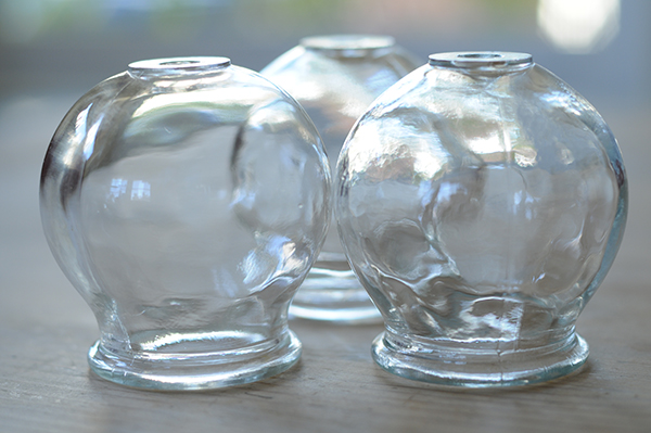 Chinese Glass Cups used for Cupping; Photo By Dave Clark.