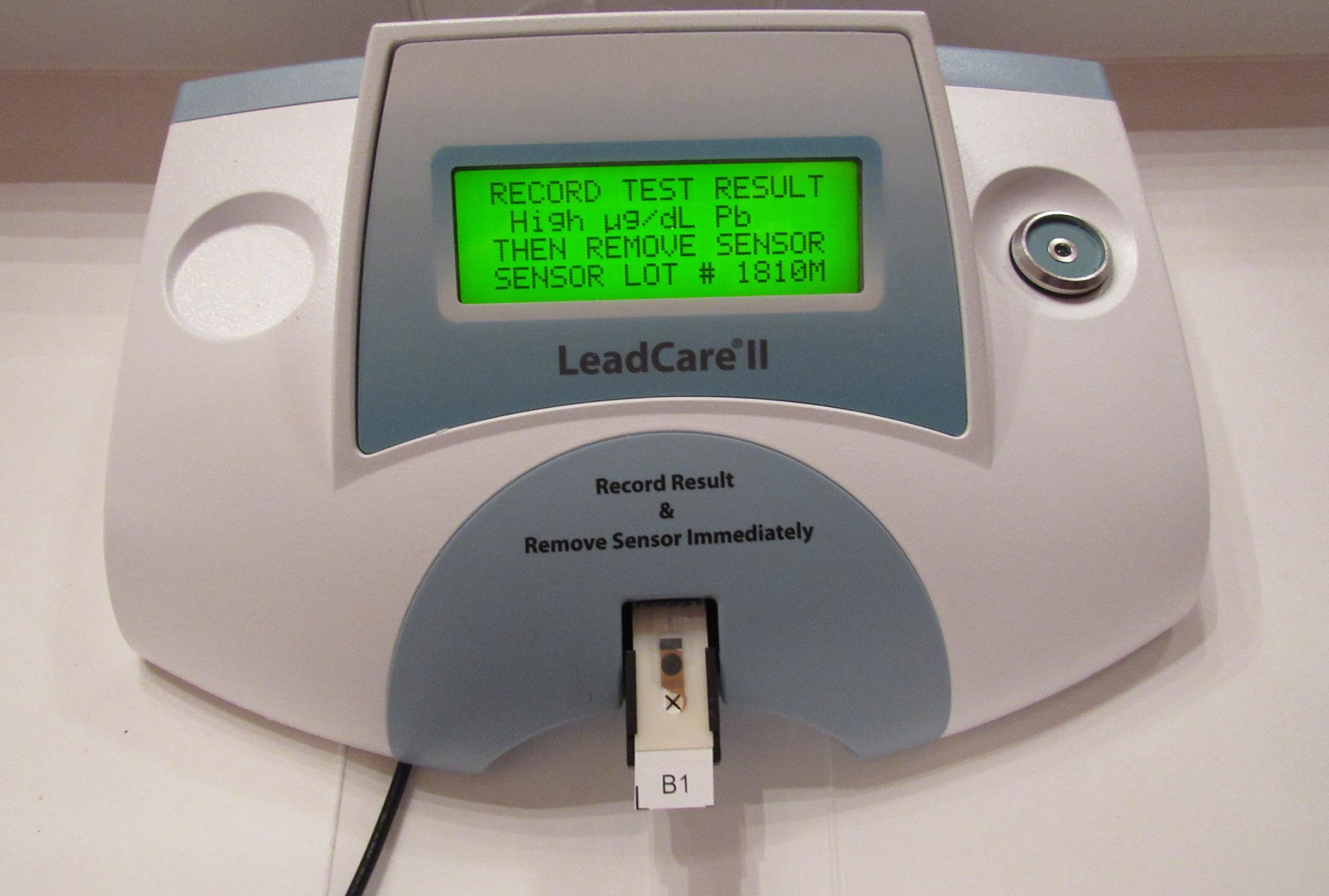 The blood lead tests reads only as HIGH...it reached the maximum result for the analyser.