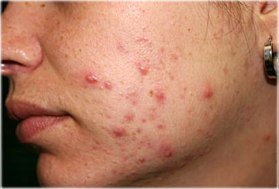 Don't Fight Acne,  Heal Acne