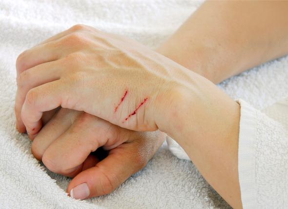 petmd-cat-scratches.jpg