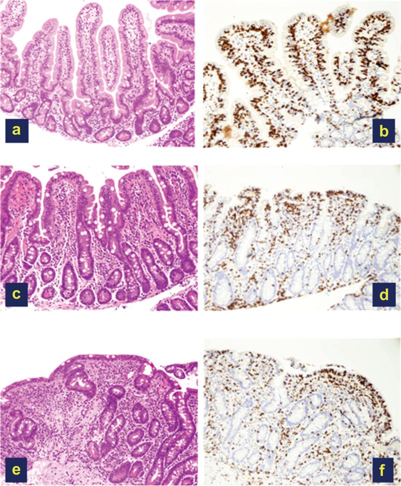 bilde a+b viser normale tarmtotter, bilde c+d viser moderat skade, og bilde e+f viser sterkt skadede tarmtotter