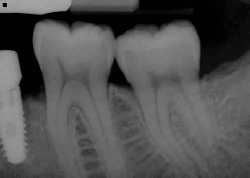 """This tooth had irreversibly inflamed pulp necessitating root canal therapy.   This is the """"before"""" image with the nerve and pulpal tissues still intact."""