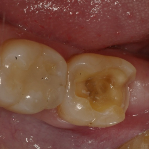 Before photo. Tooth prepared for onlay. This restoration would be very large and unpredictable for a traditional tooth-colored filling.