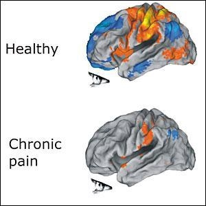 """Here we have an example of a functional MRI of a """"healthy"""" person versus someone who is in chronic pain."""