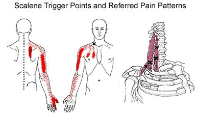 Pictured here is an example of how a trigger point of the scalene musculature of the neck can have an impact through the entire upper quarter and arm of patients in pain.