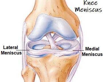 knee-mensicus-guide.jpg