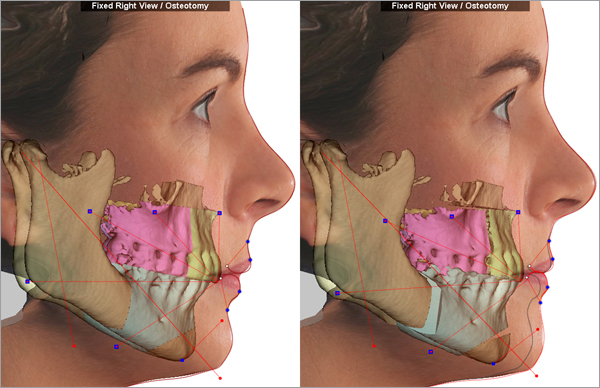 Digitally planned Lower Jaw Advancement