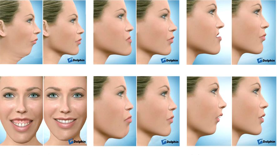 Collage of Potential Jaw Surgery Corrections