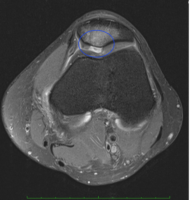 MSCC Knee MRI.png