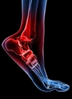 Foot and ankle conditions including drop foot -