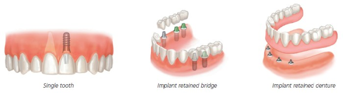 Here are some examples of how implants can restore missing teeth.