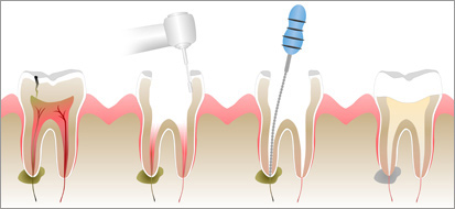 Illustrated is an infected tooth that is restored by a root canal treatment.  The infected area within the tooth is cleaned out and then sealed with a special material prior to being restored with a  crown .