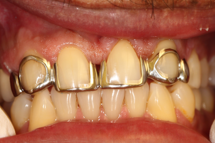"BEFORE:   Patient 8 was dissatisfied by his current ""open faced"" bridge with additional silver pontics (artificial teeth attached to a bridge) on both ends, and wanted to fix the large spaces in between all of his front teeth."