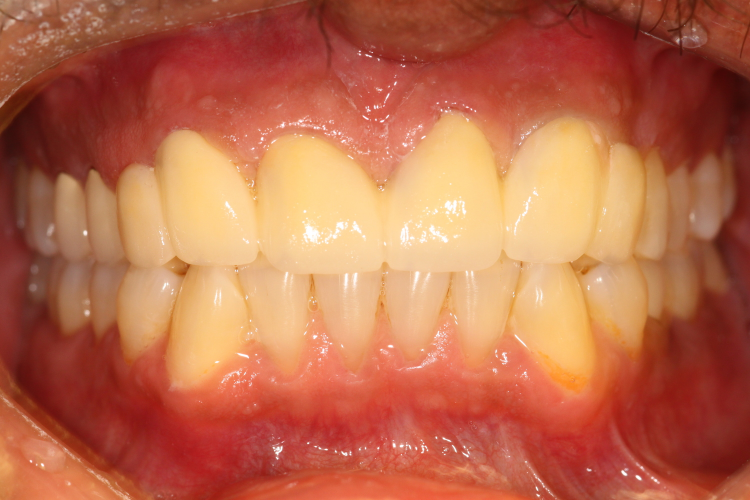 AFTER:   An    all-ceramic bridge    was created to not only correct the spaces between all of his front teeth, but also create a more natural looking smile.