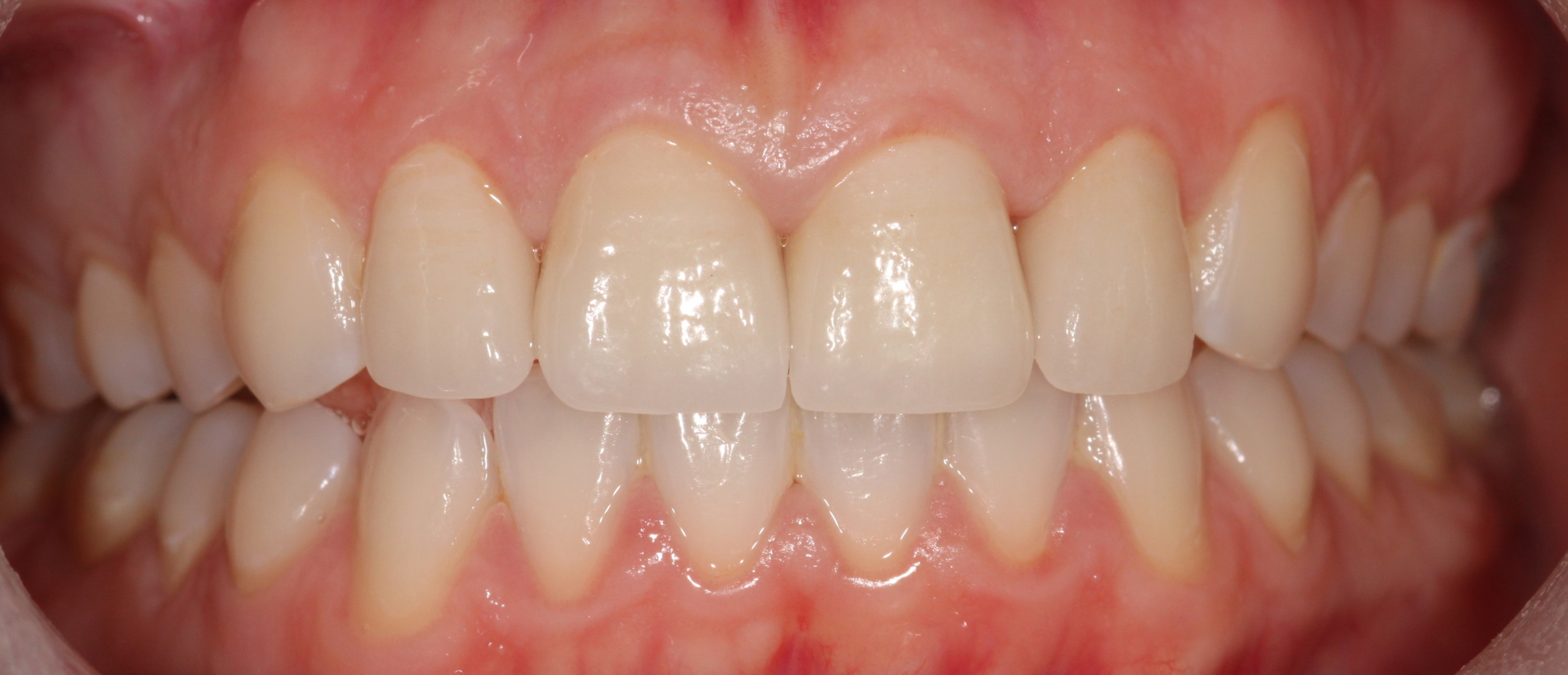 AFTER:    Gum treatment    was completed and patient's oral hygiene habits were altered to bring the gums to health;    Zoom Whitening    brightened the teeth, and finally veneers were placed to not only achieve a smoother appearance, but they were also slightly elongated to soften the overall appearance.    **click image to enlarge**