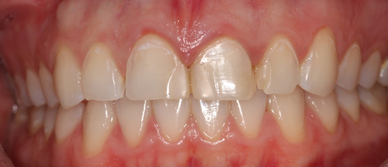 Cosmetic Dentistry — Harry Kawilarang, DDS Inc
