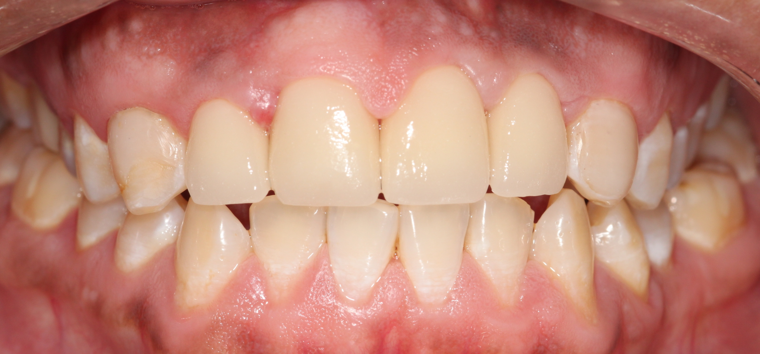 "AFTER:   Veneers were placed to not only smooth the appearance of the front teeth, but also to dramatically decrease the patient's ""open bite"", while being compliant to conserve proper function. (*Note: Though a combination of orthodontic treatment was advised prior to restorations, patient opted to not include orthodontics.)"