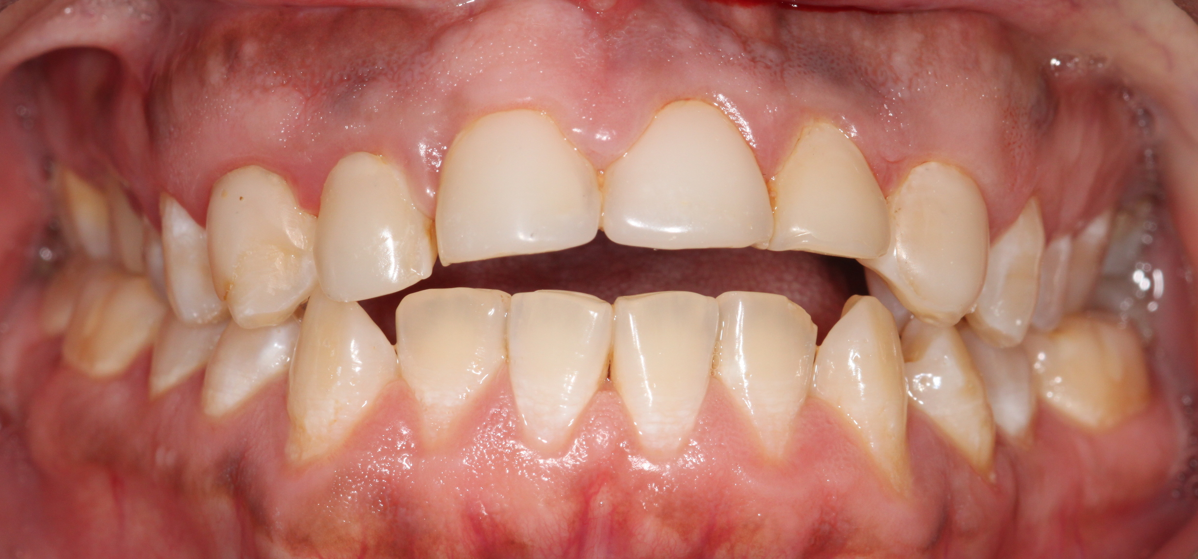 "BEFORE:   Patient 7 has several multiple composite veneers (large white fillings making up the entire front of the tooth) and fillings that are stained and have cavities existing at the margins. In addition, the patient has an ""open bite"", which means that the front teeth do not close together even with the back teeth biting together."