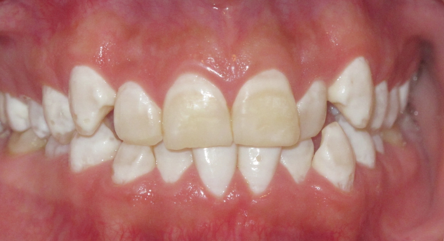 BEFORE:   Patient was dissatisfied with the position of teeth and the uneven white spotting (flourosis).