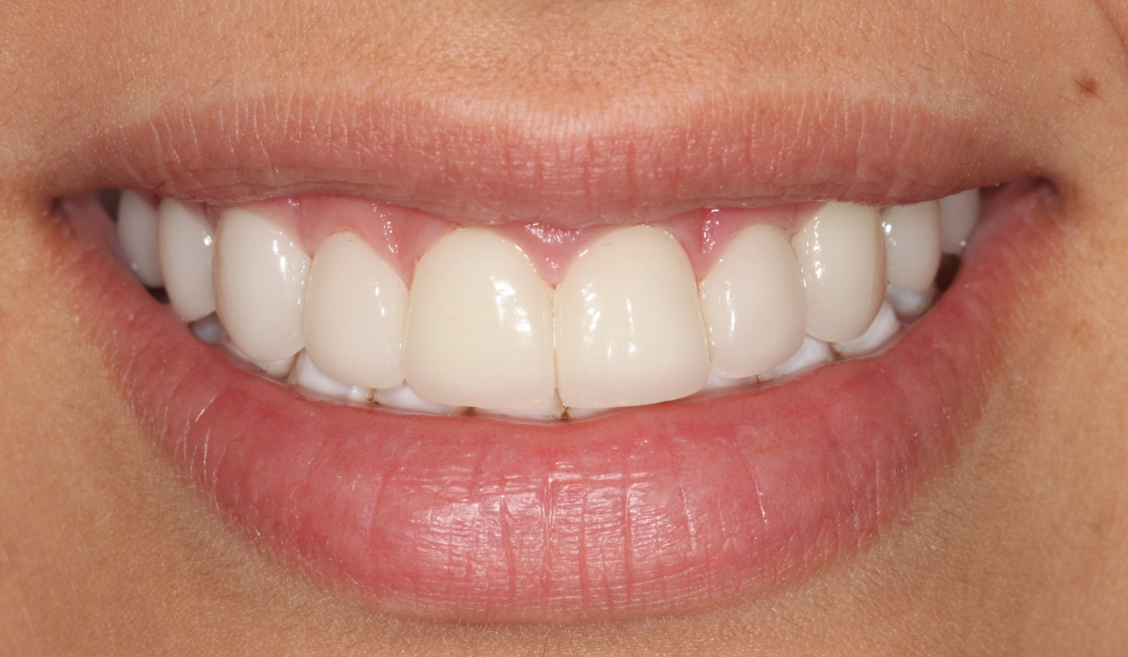AFTER:     Multi-disciplinary dentistry (Orthodontic treatment, followed by cosmetic dentistry) was incorporated for this final result.