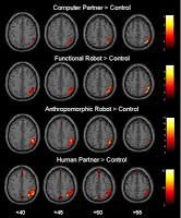 Functional magnetic resonance imaging (fMRI)