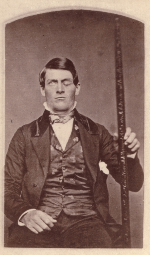 Phineas Gage holding the rod/tamping iron that was blasted through his skull and brain.