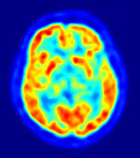 PET scan of the human brain.  Image courtesy of Jens Maus.