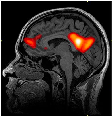 "2-Minute Neuroscience<a href=""/blog/2-minute-neuroscience-neuroimaging"">→</a><strong>Neuroimaging</strong>"