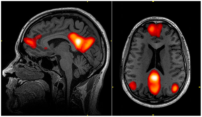 Functional magnetic resonance (fMRI) image showing activity in the default mode network.
