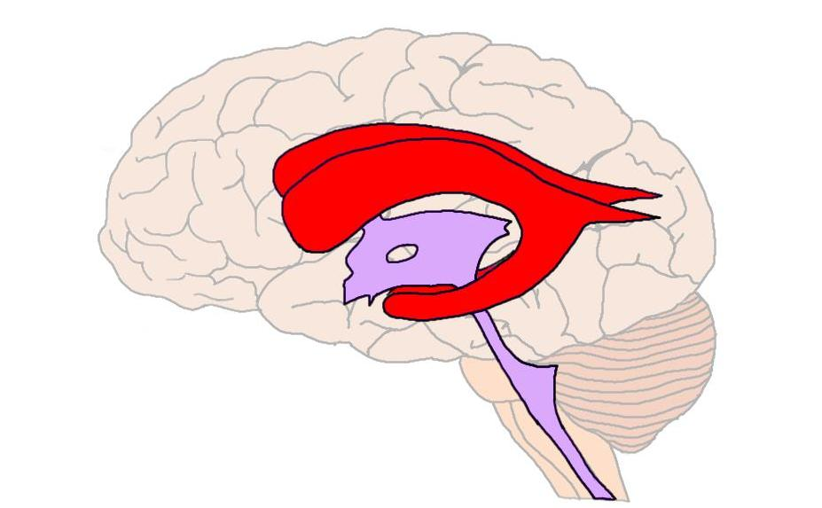 lateral ventricles (in red).