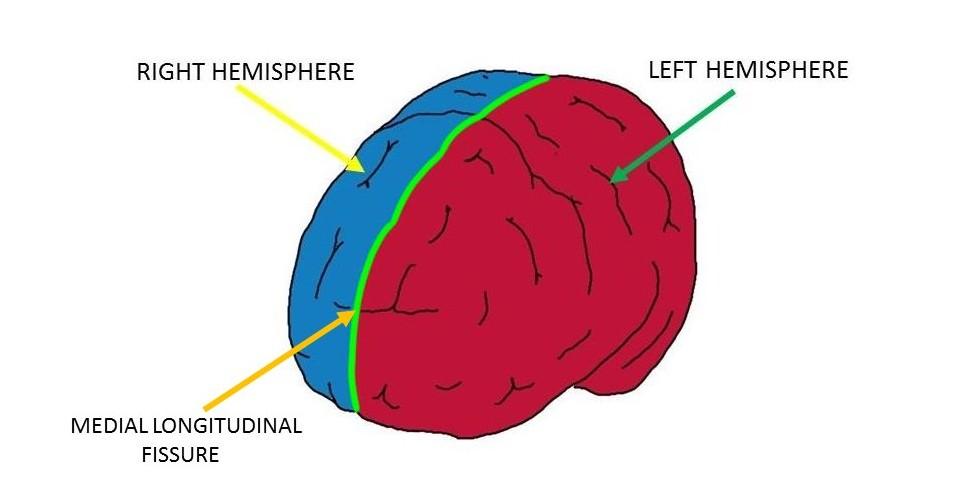 Medial longitudinal fissure (outlined in green).