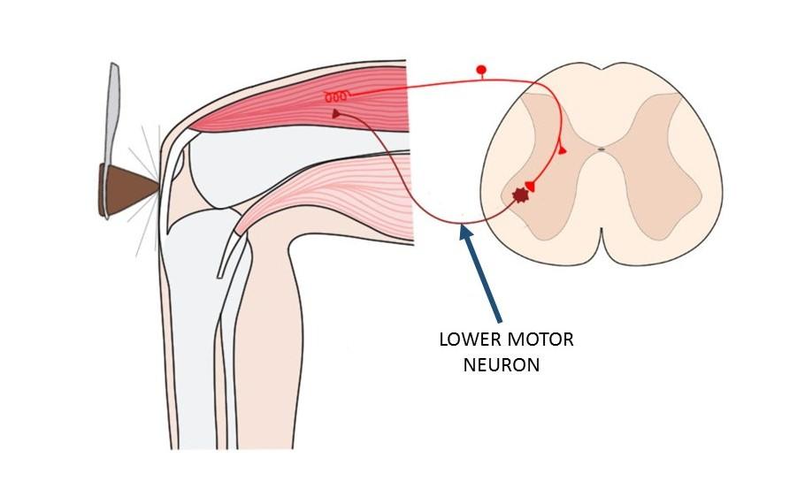 lower motor neuron