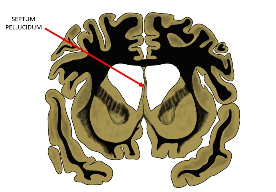 the septum pellucidum as seen in a coronal brain slice.