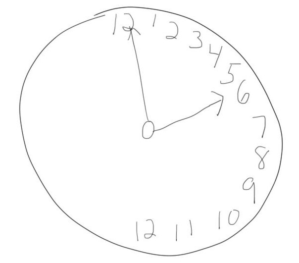 an example of what a clock drawn by a patient with hemispatial neglect might look like.