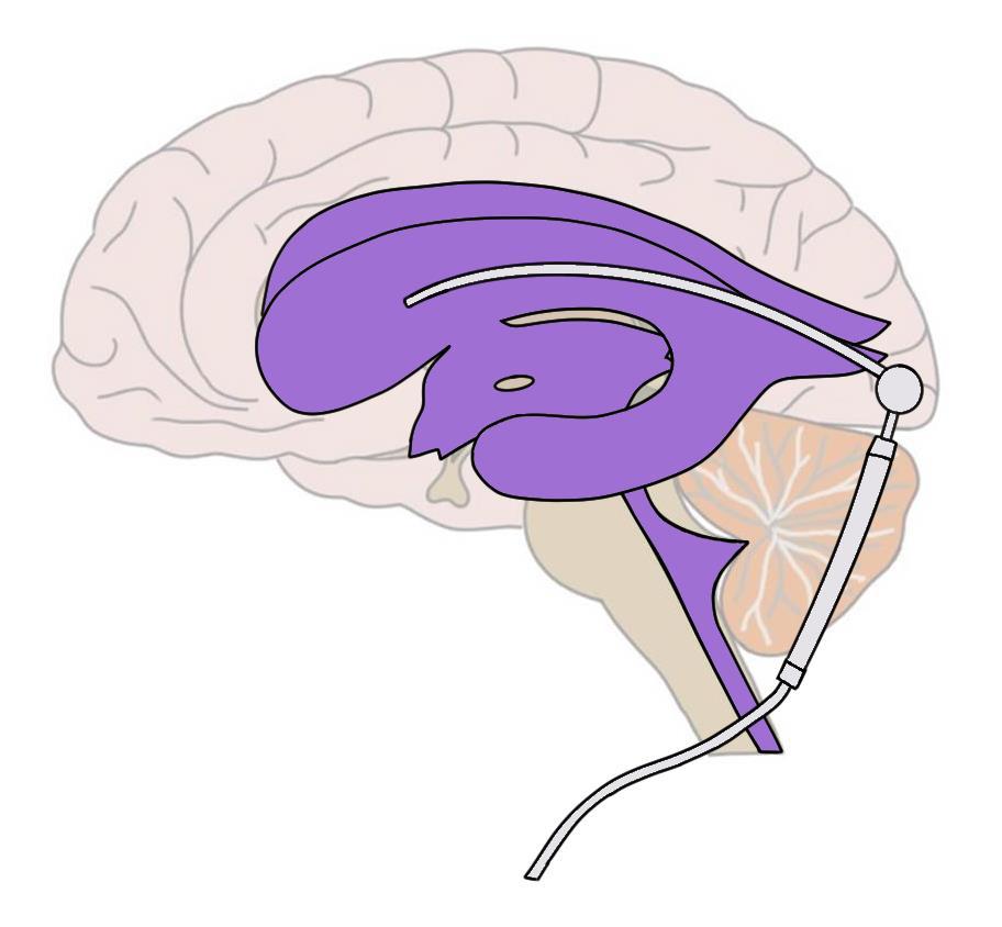 "2-Minute Neuroscience<a href=""/blog/2-minute-neuroscience-hydrocephalus"">→</a><strong>Hydrocephalus</strong>"