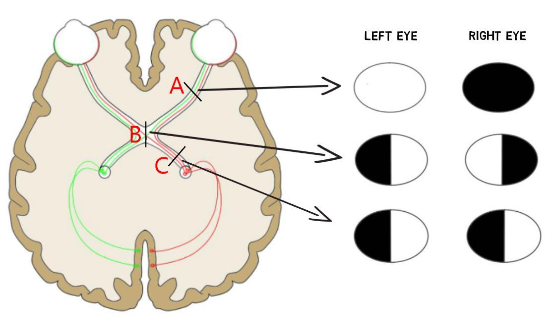 visualdefects.jpg